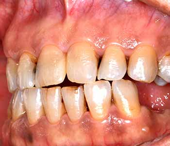 Gum Disease prevention tips from Philadelphia