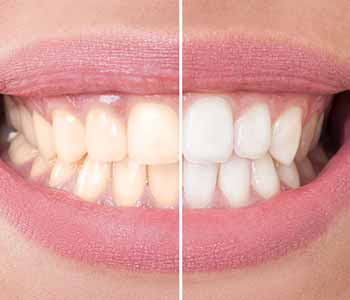 Dr.David Spilkia Why KöR deep bleaching is one of the best teeth whitening methods available at the dentist