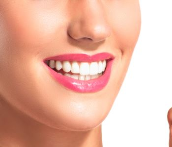 Clear Braces from Dr. Spilkia in Philadelphia, Pennsylvania