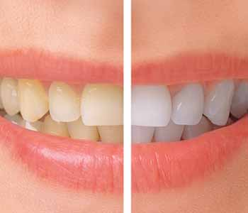 Dr.David Spilkia Why cosmetic Teeth Whitening is a popular procedure for patients in Philadelphia