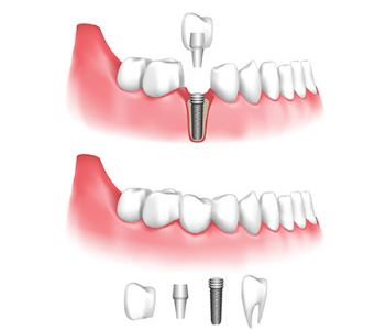 Dental Implant Procedure description image animation