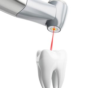 Emergency Root Canals Philadelphia