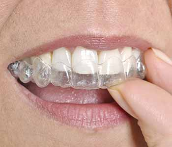 Dr.David Spilkia Your general Dentist in Northeast Philadelphia, PA offers Clear Braces for your comfort and convenience