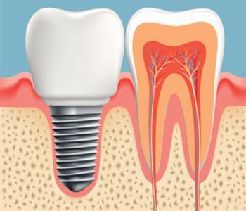 Dental Implant model image animation