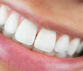 Dr.David Spilkia Philadelphia Dentist describes KöR Whitening