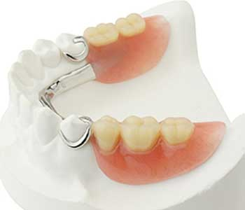 Dr. David Spilkia in Philadelphia area Dentist Describes Partial Dentures