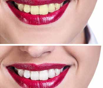 Dr.David Spilkia How professional Teeth Whitening works better than over-the-counter methods for Philadelphia area patients