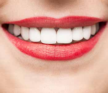 Dr.David Spilkia Why patients in Philadelphia choose professional-grade teeth whitening instead of over-the-counter solutions