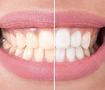 Dr.David Spilkia Professional teeth whitening based on patient preference is available in Northeast Philadelphia