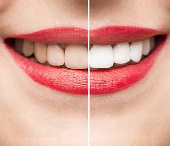 Dr.David Spilkia Experienced Philadelphia dentist can achieve the best teeth whitening results for you