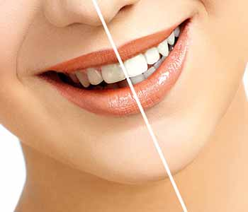 Dr.David Spilkia Why professional teeth whitening procedures are best for Philadelphia patients