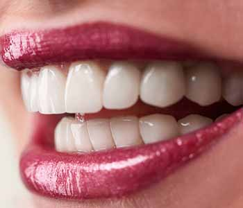 Dr.David Spilkia Tooth Whitening options available through Philadelphia dental office
