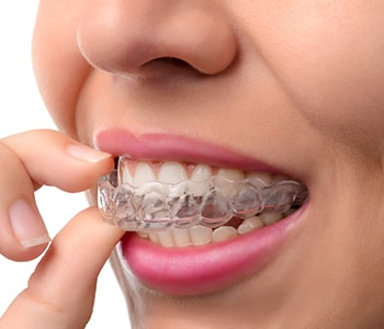 Invisalign Braces for Teens Philadelphia