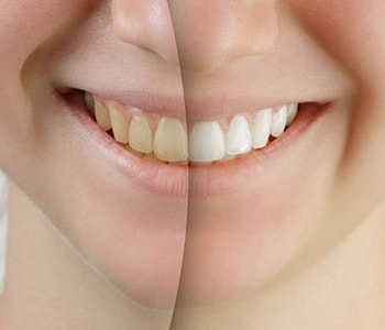 Dr.David Spilkia Philadelphia area practice offers teeth whitening services with a professional