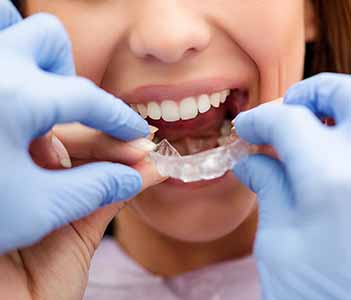 David Spilkia Family and Cosmetic Dentistry has the best Invisalign dentist near you Philadelphia