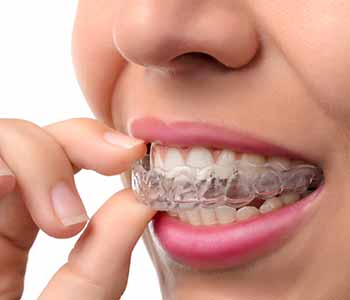 Invisalign braces are clear, comfortable, and removable for normal eating and hygiene. Call Dr. David Spilkia in Philadelphia,
