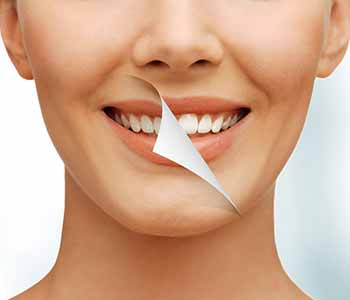 Philadelphia, PA dentist, Dr. David Spilkia, shares fast facts and in-depth information on professional teeth bleaching