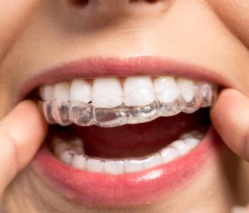 Explain the difference between Invisalign and braces, David Spilkia Family and Cosmetic Dentistry