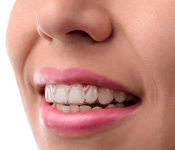 Patients with traditional braces, David Spilkia Family and Cosmetic Dentistry