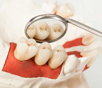 replace missing teeth, David Spilkia Family and Cosmetic Dentistry