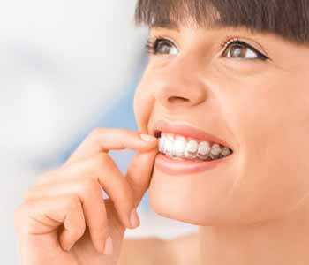Dr. David Spilkia works with patients and helps them compare their options, including traditional braces.