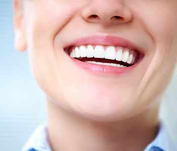 Smilling woman having brighter teeth