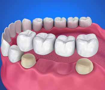 Crowns and bridges address damaged or missing teeth. Available from David Spilkia Family and Cosmetic Dentistry in Philadelphia