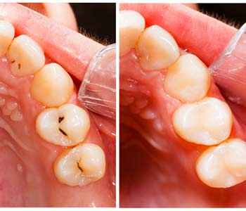 Composite Tooth Filling in Philadelphia PA area Image 2