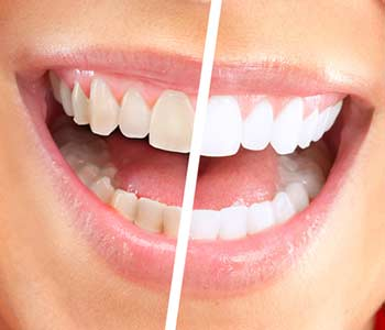 Types of Cosmetic Dental Services for Your Smile in Philadelphia, PA area