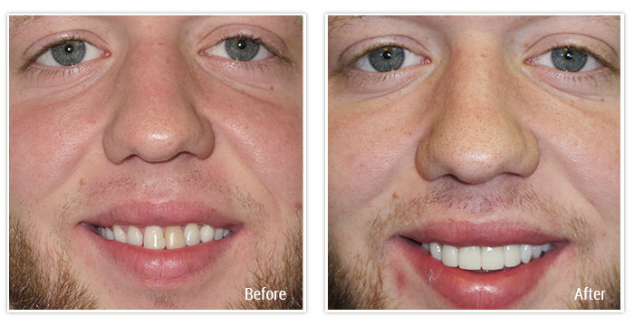 Cosmetic Dentistry - Gallery Image 01