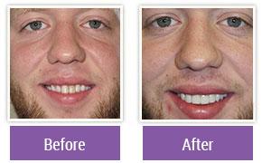 Cosmetic Dentistry Philadelphia PA - Gallery Image 01