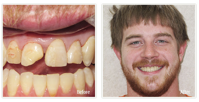 Cosmetic Dentistry - Gallery Image 02