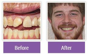 Cosmetic Dentistry Philadelphia PA - Gallery Image 02