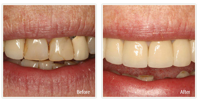 Porcelain Veneers and Implant Crowns - Gallery Image 03