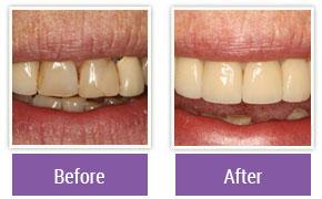 Cosmetic Dentistry Philadelphia PA - Gallery Image 03