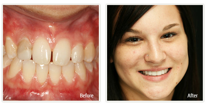 Porcelain Veneers and Implant Crowns - Gallery Image 01