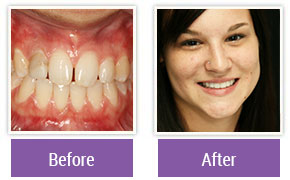 Dental Veneers Philadelphia PA - Gallery Image 01