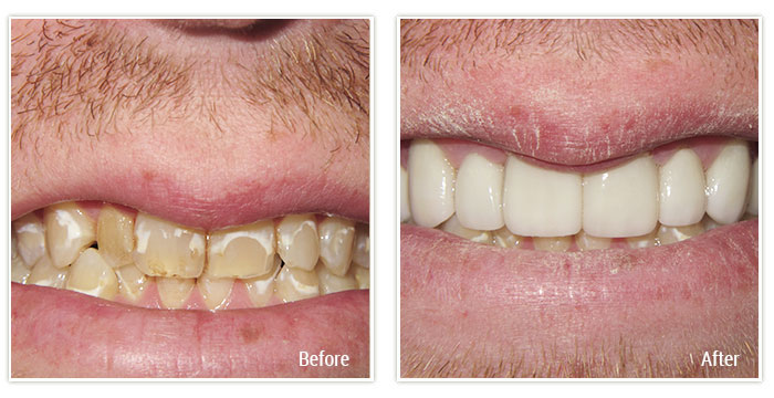 Porcelain Veneers and Implant Crowns - Gallery Image 02