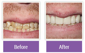 Dental Veneers Philadelphia PA - Gallery Image 02