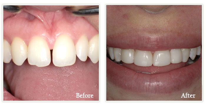 Dental Bonding - Gallery Image 01