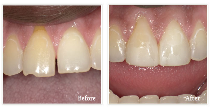Dental Bonding - Gallery Image 02
