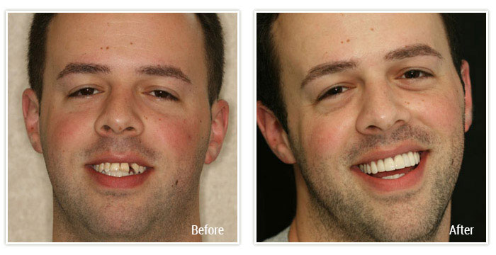 Porcelain Veneers and Implant Crowns - Gallery Image 04