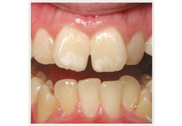 case 4 before Six Month Smiles treatment
