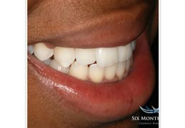 case 7 before and after Six Month Smiles treatment