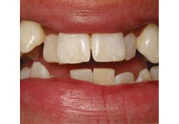 case 7 before Six Month Smiles treatment