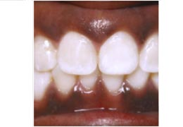 case 8 before and after Six Month Smiles treatment