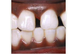 case 8 before Six Month Smiles treatment
