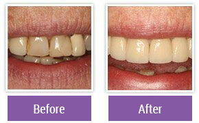 Dentist in Northeast Philadelphia - Gallery Image 03