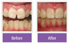 Dentist in Northeast Philadelphia - Gallery Image 04