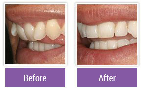 Dentist in Northeast Philadelphia - Gallery Image 07